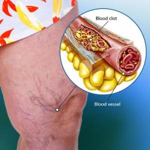Cara Mengatasi Pembekuan Darah Dengan Pengobatan Herbal Alami